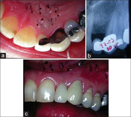 Palatal view of the two-unit bridge (22 pontic, 23 abutment) (a); radiograph of the construction (b); clinical view (c). All pictures are taken 10 years after the insertion of the bridge. Courtesy of Dr. K-G Olsson, Gothenburg, Sweden