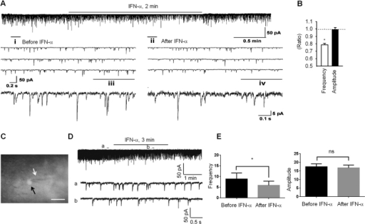 IFN-α inhibits excitatory synaptic transmission in IIo neurons of rat and mouse spinal cord.(A) Patch clamp recording in spinal cord slice (ex vivo) shows an inhibition of the frequency but not the amplitude of spontaneous excitatory postsynaptic currents (sEPSCs) in lamina II neurons after superfusion of IFN-α (rat, 25 ng/ml, 2 min). i and ii are enlarged recordings before and after IFN-α application. iii and iv are further enlargements of i and ii, respectively. (B) Frequency and amplitude of sEPSCs, expressed as ratio of baseline. 7 out of 9 recorded neurons respond to IFN-α. *P < 0.05, n = 7 neurons/group. The comparison was made between pre-treatment baseline and post-treatment in the same neurons using two-tailed paired student's t-test. (C) Mouse spinal cord slice image showing a recording electrode (white arrow) in a SOM+ neuron (black arrow). Scale, 20 μm. (D) Traces of sEPSCs in mouse spinal cord slice before and after the IFN-α treatment (mouse, 50 Units/ml). (E) Frequency and amplitude of sEPSCs in mouse spinal cord slice. *P < 0.05, two-tailed paired student's test, n = 6 neurons/group. ns, not significant. All the data were mean ± S.E.M.