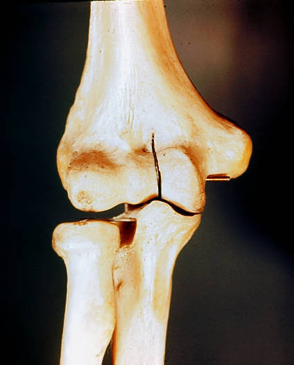 medial humoral epicondyles; lateral humoral epicondyles; radiohumeral joint; radioulnar joint