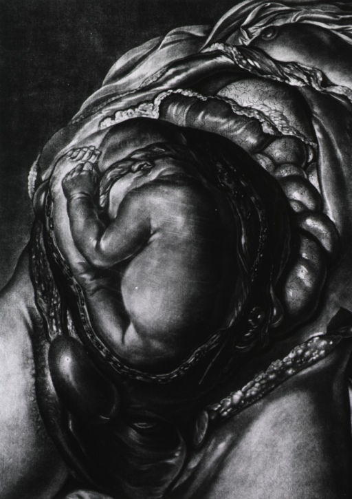 <p>View of full term fetus in a breech position in the uterus.</p>