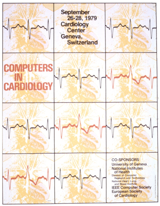 <p>A graphic of a human heart beat (QRS complex) is over an anatomical drawing of a chest cavity from Leonardo DaVinci.</p>