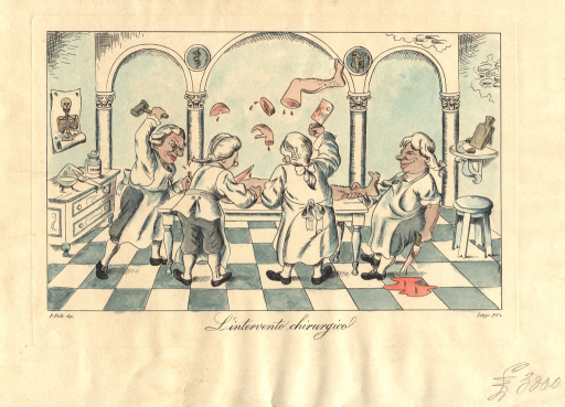 <p>A satirical rendering of an operating gallery.  A group of men in c18 wigs and white aprons attack a naked body on an operating table.  Each of the men dismembers the body with various tools: a hammer, a saw, a cleaver, a knife.  Dismembered body parts and shown hanging above the body.  A pool of blood gatheres on the tiled floor.</p>