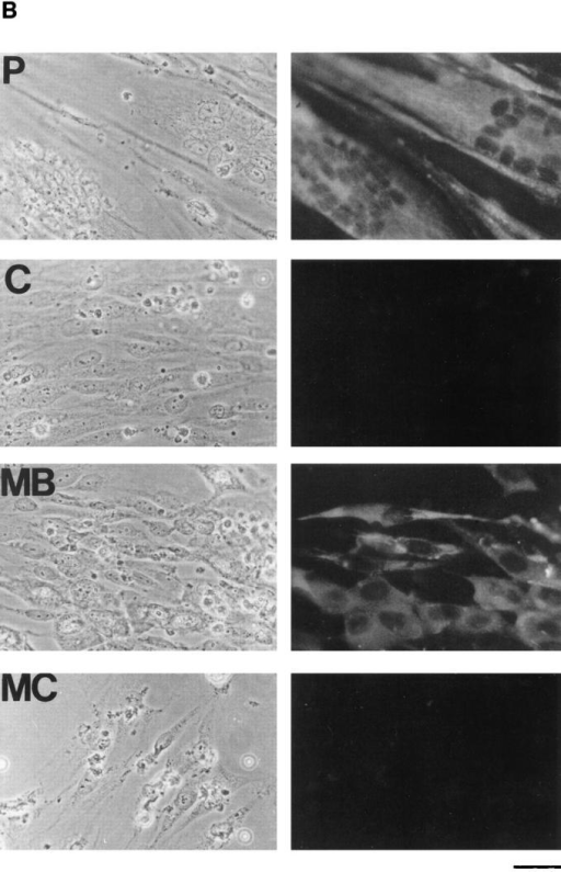 Effects of v-Myc, Bcl-2, and CEA on culture density and differentiation. (A) Photomicrographs of cultures seeded directly in  DM and incubated for 4 d. (B) Photomicrographs of P, C, MB, and MC cultures incubated for 4 d in DM showing immunofluorescence  with anti-myosin antibody and of corresponding fields by phase contrast. Bar: (A) 180 μm; (B) 36 μm.