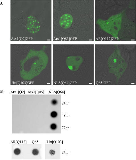 Nuclear ataxin-1 accumulations do not resemble aggregates formed by other disease-related polyglutamine-expanded proteins.(A). Live cell images of wild-type and polyQ-expanded ataxin-1 (Atx1[Q2]GFP and Atx1[Q85]GFP) and polyglutamine-expanded proteins androgen receptor (AR[Q112]GFP), huntingtin exon-1 (Htt[Q103]GFP), NLS[Q64]GFP and Q65-GPF in Cos7 cells. (B). Filtertrap assay of celllysates of Cos7 cells expressing Atx1[Q2]GFP, Atx1[Q85]GFP and NLS[Q64]GFP, 24, 48 and 72 hr after transfection (upper panel) and of Cos7 cells expressing AR[Q112]GFP, Q65-GFP and Htt[Q103]GFP 24 hours after transfection (lower panel). Sizebar = 1 µm.