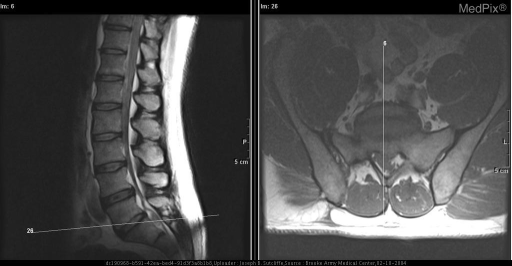 PACS (picture archiving and communication system) allows the radiologist to cross-reference sagittal and axial images to a specific level or specific point. The white line on the sagittal image indicates the specific level and angle of the accompanying axial image. The line through the axial image defines the transverse location of the sagittal image.  This is a convenient feature which helps the radiologist to  quickly and accurately correlate axial and sagittal findings.