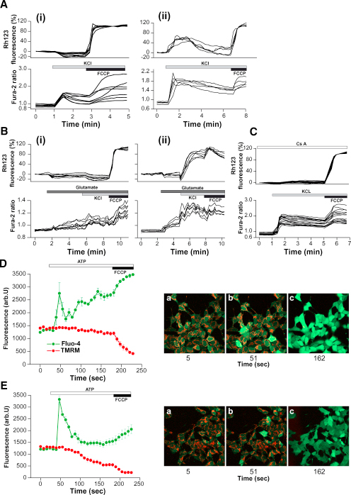 Physiological Calcium Stimuli Induce Mitochondrial Depolarization in PINK1 KD Cells(A–C) Mouse (Ai and Aii) and human (Bi–Biii) neurons were loaded with fura-2 am and Rh123. KCl (50 mM) produced a rise in [Ca2+]c in mouse wild-type neurons (Ai) and human control neurons (Bi). In PINK1 KO mouse neurons (Aii) and in PINK1 KD human neurons (Bii), the [Ca2+]c was associated with an increase in Rh123 fluorescence and Δψm depolarization. Preincubation of human PINK1 KD neurons with 0.5 μM CsA prevented the Δψm depolarization of cells, but not the [Ca2+]c signal (C).(D and E) Human neuroblastoma cells were loaded with fluo-4 (green) and TMRM (red). ATP (100 μM) induced a rise in [Ca2+]c and thus an increase in fluo-4 fluorescence. In PINK1 KD cells the ATP-induced [Ca2+]c signal was associated with a decrease in TMRM fluorescence and Δψm depolarization. Error bars represent mean ± SEM.