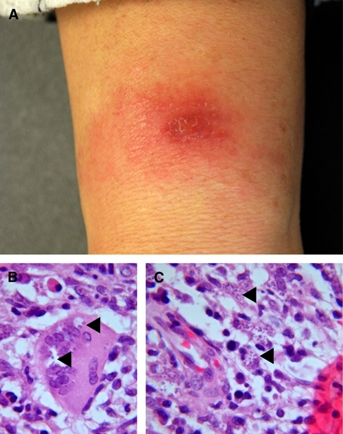 Cutaneous Old World leishmaniasis caused by Leishmania tropica in an Afghan woman. A, Initial presentation of the dry, plaque-like lesion with central nodule on the forearm. B, Intracellular parasites in vacuoles of a giant cell (arrowheads). Haematoxylin and eosin stain, magnification ×1,000. C, Leishmania in macrophages (arrowheads). Haematoxylin and eosin stain, magnification ×1,000. This figure appears in color at www.ajtmh.org.