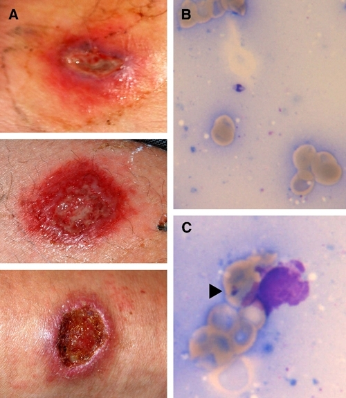Cutaneous New World leishmaniasis caused by Leishmania braziliensis in a German traveler after a vacation in Costa Rica and Belize. A, Initial presentation of the wet ulcerated lesion on the ankle (upper row), thigh (middle row), and forearm (lower row). Lesions were superinfected with Panton Valentine leukocidin-negative Staphylococcus aureus, Escherichia coli, and viridans streptococci. B, Extracellular Leishmania amastigote in tissue scarification. Giemsa stain, magnification ×1,000. C, Intracellular parasite in a monocyte (arrowhead). Giemsa stain, magnification ×1,000. This figure appears in color at www.ajtmh.org.