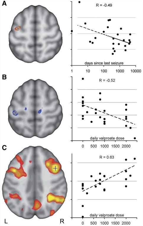 Motor cortex coactivation correlates with disease activity and treatment. (A) Activation in the left central region in '2-back minus 0-back' contrast was stronger in patients with JME with more active disease. The section on the left shows voxels, negatively correlated with time since last seizure (uncorrected, P < 0.05). Crosshair indicates voxel for which correlation is plotted on the right (R = −0.49). (B) Post hoc analysis of drug effects indicates a specific effect of valproate in JME. Left central activation decreased with increasing daily valproate dose (uncorrected, P < 0.05, R = −0.52). (C) Activity within the typical bilateral frontal and parietal working memory network, on the other hand, correlated positively with valproate dose, indicating a normalizing effect of valproate on the cortical activation pattern in JME (C, uncorrected, P < 0.05, R = 0.63).