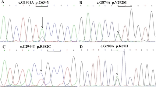 Portion of genomic DNA and RT-PCR product sequencing from tumor tissues.A, Direct sequencing consequences of RT-PCR products from PHEO tissue of III-12 indicated a heterozygous G/A mutation at codon 634, which was consistent with the results of DNA from blood and tumor tissues and whole exome sequencing. B, C, D, Direct sequencing consequences of RT-PCR products from MTC tissue of III-11 indicated heterozygous G/A, C/T, and G/A mutations at codons 292, 982, and 67, respectively, which was consistent with the results of DNA from blood and tumor tissues and whole exome sequencing.