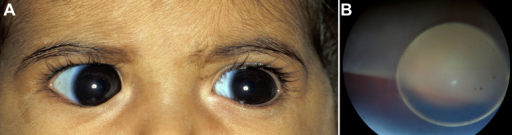 Family 1: cousin of the proband. A: At one year of age, large corneas are evident (14 mm horizontal diameters) but without corneal haze/scarring or Descemet breaks. B: After primary Ahmed valve implantation in both eyes, the crystalline lens dislocated into the posterior chamber and retinal tears developed bilaterally. The right eye is shown.