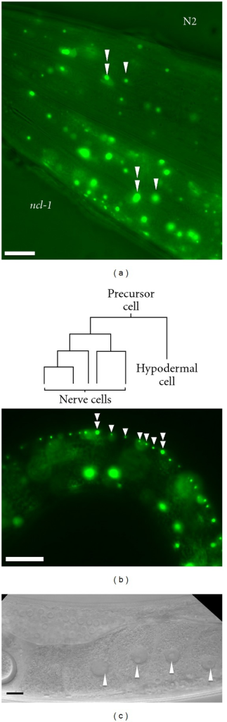 Comparison of the nucleolar size in ncl-1 and N2 worms. (a) N2 and ncl-1 background transgenic worms (as indicated) side by side and photographed under a fluorescence microscope to show the head region. The heads of both worms are facing left. Double arrowheads indicate nucleoli where the nucleolar protein (FIB-1::GFP) expression was less affected by NCL-1 than nucleoli marked by a single arrow. (b) Schematic illustration of ventral cord neurons and hypodermal cell lineages (upper panel). The fluorescence micrograph shows that the hypodermis nucleolar size (indicated by double arrowheads) is larger than nucleoli in neuronal cells (indicated by single arrowheads). The worm head is facing left and the ventral side is at the top. (c) A worm gonad arm-section treated with RNAi against the ncl-1 gene shows a similar appearance to the -1 oocyte nucleolus (arrowhead) of ncl-1 mutants. Scale bars indicate 20 μm.