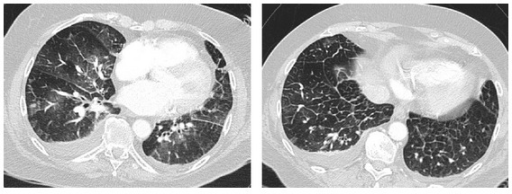 Computed tomography in 77-year-old patients showing signs of congestive heart failure with ground glass opacities, smooth thickening of interlobular septae, and bilateral effusions.