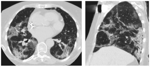 Drug induces lung changes with the use of amiodarone in an 81-year-old patient. Computed tomography shows the pattern of cryptogenic organizing pneumonia.