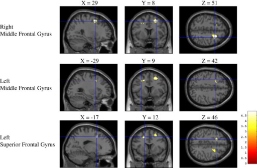 Gray matter density in fallers versus non-fallers. Regions of gray matter reduction in fallers compared to non-fallers (p < 0.001, uncorrected). Fallers exhibited a greater reduction of gray matter loss in the bilateral middle frontal gyrus and superior frontal gyrus.