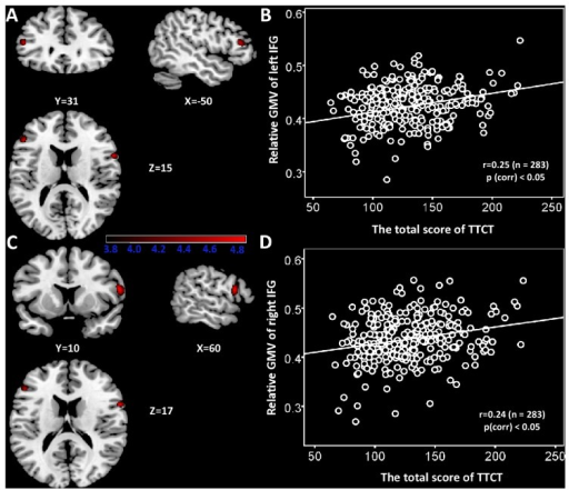 The relationship between regional GMV and verbal creativity.(A) Statistical parametric mapping for the covariation between subjects' verbal TTCT total score and regional GMV, the left IFG (BA45) is significantly positive associated with verbal TTCT total sore. The significant cluster is p < 0.05 nonstationary corrected with an underlying uncorrelated voxel level at p<0.0001. Structural maps shown at sagittal, coronal and axial sections are overlaid on the T1-weighted images. The significant cluster is shown at t > 3.8 for visualization purpose. (B) A scatterplot between verbal TTCT total score and relative GMV of the left IFG adjusted for age, gender, and general intelligence is shown for illustration purpose only. (C) The right IFG in which variability in regional GMV exhibited significant positive correlation with verbal TTCT total score is superimposed on a standard T1-weighted template brain in MNI stereotactic space. (D) A scatterplot between verbal TTCT total score and relative GMV of right IFG adjusted for age, gender, and general intelligence is shown for illustration purpose only.