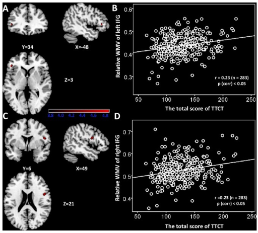 The relationship between regional WMV and verbal creativity.(A) Statistical parametric mapping for the covariation between subjects' verbal TTCT total score and regional WMV, the left IFG is significantly positive associated with verbal TTCT total sore. The significant cluster is p <0.05 nonstationary corrected with an underlying uncorrelated voxel level at p<0.0001. Structural maps shown at sagittal, coronal and axial sections are overlaid on the T1-weighted images. The significant cluster is shown at t > 3.8 for visualization purpose. (B) A scatterplot between verbal TTCT total score and relative WMV of the left IFG adjusted for age, gender, and general intelligence is shown for illustration purpose only. (C) The right IFG in which variability in regional WMV exhibited significant positive correlation with verbal TTCT total score is superimposed on a standard T1-weighted template brain in MNI stereotactic space. (D) A scatterplot between verbal TTCT total score and relative WMV of the right IFG adjusted for age, gender, and general intelligence is shown for illustration purpose only.
