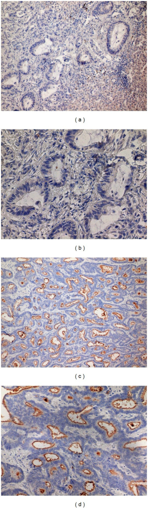 Expression of CD133. (a, b) Samples negative for CD133 in the lumen of tumor glands, (c, d) samples with positive CD133 staining on the apical portions of tumor cells. Magnification 200x (a, c) and 400x (b, d) of the same samples.