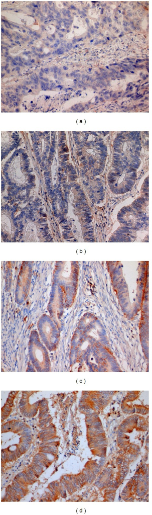 Example of samples with different levels of CD44 staining intensity. On our semiquantitative scale, samples were marked as intensity 0 (a), intensity 1 (b), intensity 2 (c), and intensity 3 (d). Magnification 400x.