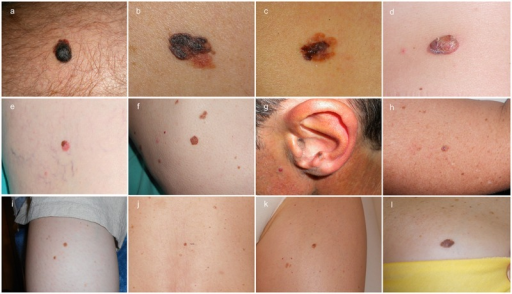 (A–D) Clinical images of melanomas that led to patient's consultation (MMC), (E–H) melanomas detected during routine control (MMRC), and (I–L) melanomas detected due to changes during digital dermoscopy follow-up (MMDFU). (Copyright: ©2014 Salerni et al.)
