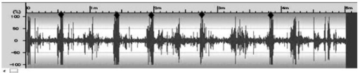 Sound waves of ruminal contractions processed by Sound it! 5.0 for windows (SIT50W, Internet Co., Ltd, Japan). Recording was performed for 5 min from upper left flank of the cow using stethoscope connected sound recorder (ICR-S340RM, Sanyo Electric Co., Ltd, Japan). Closed symbols (♦) indicate the time regions/ places in which ruminal contractions occurred.