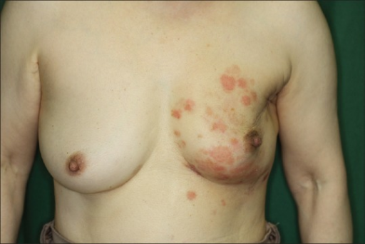 Two months after the radiotherapy, erosions appeared on her left chest, which had been exposed to the electron beam