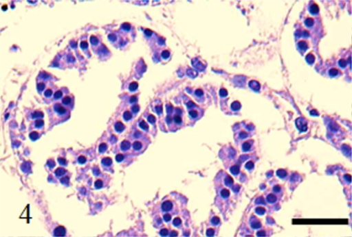 HE stain. Case no. 1. Scant mitosis and mild nuclear atypia. Bar: 100 µm.