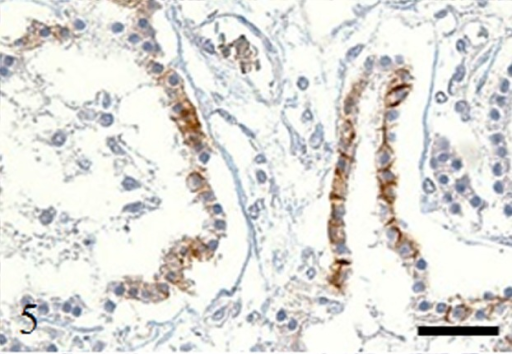 Immunohistochemistry. Case no. 1. Expression of E-cadherin in the tumor cells. Bar: 100 µm.