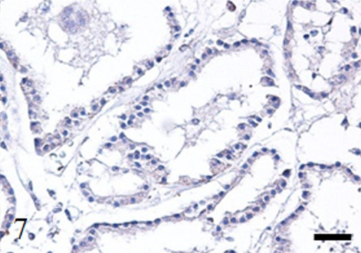 Immunohistochemistry. Case no. 1. No expression of N-cadherin in the tumor cells. Bar: 100 µm.