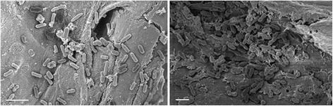 Bacterial adhesion to sugarcane harvest residues. Scanning electron microscopy (SEM) images showing bacterial adherence to plant fibers originating from sugarcane HT. Left image, rod-shaped Klebsiella oxytoca strain Kd70 TUC-EEAOC. Right image, diplococci of the Enterococcus casseliflavus strain Kd7 TUC-EEAOC. White bars shown in the left bottom corners of both figures indicate 2 μm.