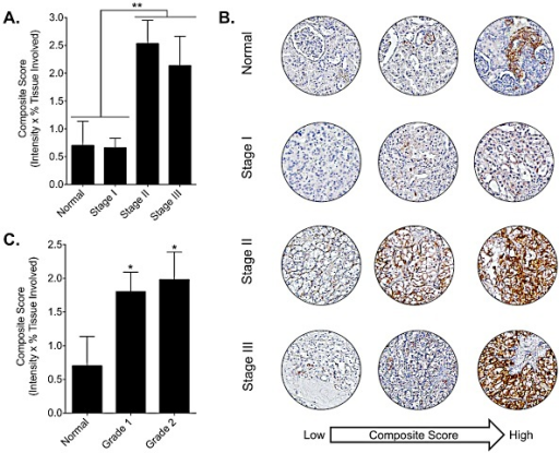 DCLK1 protein is overexpressed in RCC tumor tissueA) DCLK1 protein is significantly increased in stage II-III tumors compared to normal or stage I tumors (p<0.002). B) Representative DCLK1 immunoreactivity for normal, stage I, stage II, and stage III tissue samples from low to high composite score. C) DCLK1 immunoreactivity is elevated in grade 1 and grade 2 tumors.