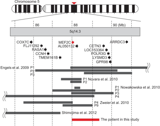 Schematic representation of the deletions in chromosome 5q14.3 from all the previous reports (black bars) and our patient in this study (red bar). Black arrows represent the direction and the length of genes in this region. Modified from Shimojima et al. [6] with permission of John Wiley & Sons.