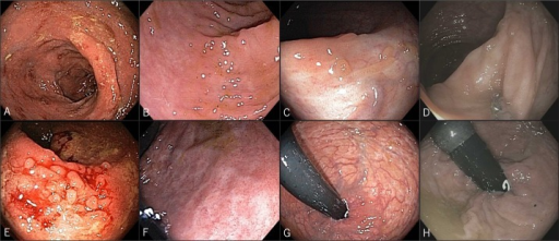 Endoscopic images of the sigmoid colon (A) before vedolizumab, (B) at week 6 of treatment, (C) at week 52 of treatment, and (D) at 4.5 years of treatment. Endoscopic images of the rectum (E) before vedolizumab, (F) at week 6 of treatment, (G) at week 52 of treatment, and (H) at 4.5 years of treatment.