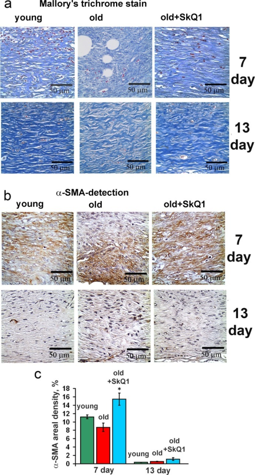 Effect of SkQ1 on the collagen fiber formation and α-SMA expression in granulation tissue and in scar(a) Mallory's trichrome staining and (b) α-SMA immunostaining of granulation tissue at 7 and 13 d. (c) Percentage of the area containing α-SMA-positive cells (areal density). Data are present-ed as mean ± SD; *P < 0.05 for SkQ1-treated versus control.