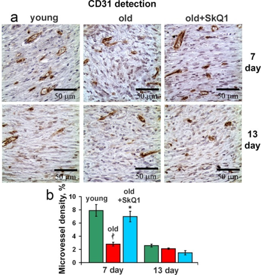 Effect of SkQ1 on the angiogenesis(a) CD31 immunostaining of wound area tissue at 7d and 13d. (b) Vessel density in CD31 stained sections of old mice. Data are presented as mean ± SD;*P < 0.05 for SkQ1-treated versus control; ‡P < 0.05 for the untreated young versus old mice.