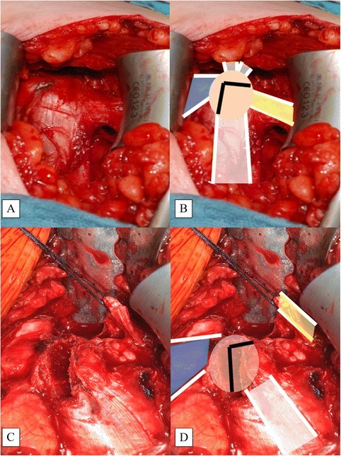 Tip of Coracoid Process (CP, beige) with Attached Structures. Depiction (a) and illustration (b). The bone cut marked as an inverted L (black lines) (b). The L-shaped incision (c) and the cut creating the coracoid bone block (d) with the conjoined tendon attached (white). Note that the PMM (blue) is attached to the medial one-third of the CP. The CAL (yellow) is secured with a Vicryl™ suture