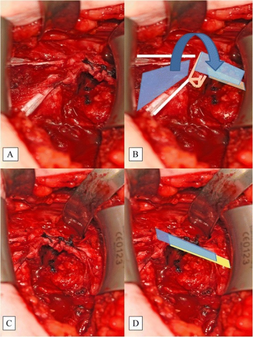 The PMM Fascia (blue illustration) is Incised and Flipped Laterally (a, b). The CAL (yellow illustration) is stitched to the PMM with strong Vicryl™ sutures (c, d). This is called the pectoralis minor fascia flap. CAL, coracoacromial ligament; PMFF, pectoralis minor fascia flap; PMM, pectoralis minor muscle