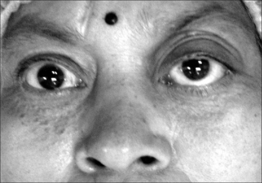 Bilateral proptosis with frozen globe (complete restriction of ocular movements) in a middle aged female with IgG4-related orbitopathy