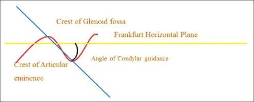 Line diagram of the panoramic tracing of the angle of sagittal condylar guidance
