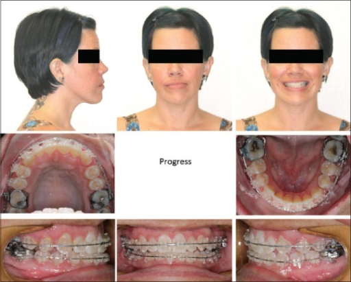 Extraoral and intraoral clinical photos of the subject in the last progress visit