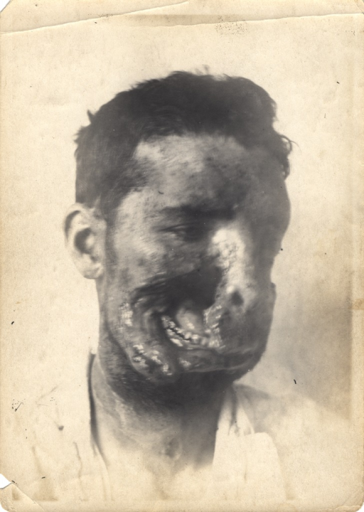 <p>Black and white photograph of injured soldier with massive trauma to the face.  A large, gaping wound on the left side of his face reveals massive scarring, as well as his jaw, teeth, and nasal cavity.</p>