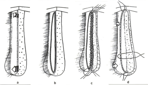 (a) Limited urethral mobilization from midline ventrally to beyond midline dorsally, (b) urethral incision at dorsal midline (12 O'clock), (c) graft sutured to medial (right) urethral margin, and (d) graft sutured to lateral (left) urethral margin