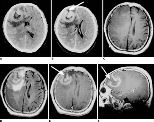Images of 57-year-old man with lymphoma of right frontal lobe including plain CT image (A), contrast CT image (B), axial T1-weighted image (C), FLAIR (D), postcontrast axial T1-weighted image (E) and sagittal T1-weighted image (F). On plain CT image; lesion was hyperdense. 'Open-ring' enhancement (arrows) was found and was characterized as thick and not uniform.