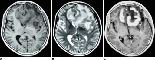 Images of 56-year-old woman with lymphoma involving frontal lobe bilaterally including pre-contrast axial T1-weighted image (A), pre-contrast T2-weighted image (B) and post-contrast axial T1-weighted image (C). 'Open-ring' enhancement (arrow) was found and was characterized as thick and not uniform.
