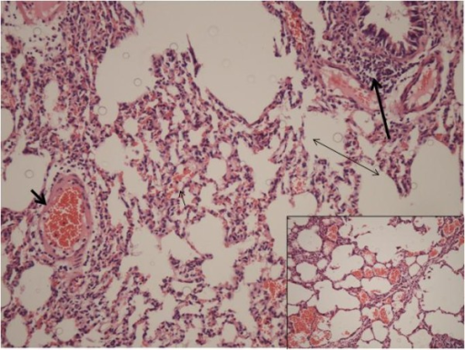 Photomicrograph of histopathology from Group A (Control) displaying increased intra-alveolar hemorrhage (thin short arrow), congestion (thick short arrow), and leukocyte infiltration (thick long arrow). Alveolar edema (double arrow) was slight. (Hematoxylin-Eosin, original magnification × 20)