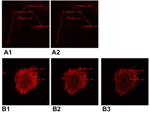 Confocal laser scanning microscopy of cellular incorporation and release of doxorubicin in A549 multicellular spheroids. (A1) A549 spheroid cells incubated in free doxorubicin for 4 hours. (A2) Free doxorubicin released from the spheroid for one hour. (B1) A549 spheroid cells incubated in composite doxorubicin-loaded micelles with the same doxorubicin densities for 4 hours. (B2) Composite doxorubicin-loaded micelles released from the spheroid for one hour. (B3) Composite doxorubicin-loaded micelles released from the spheroid for 2.5 hours.