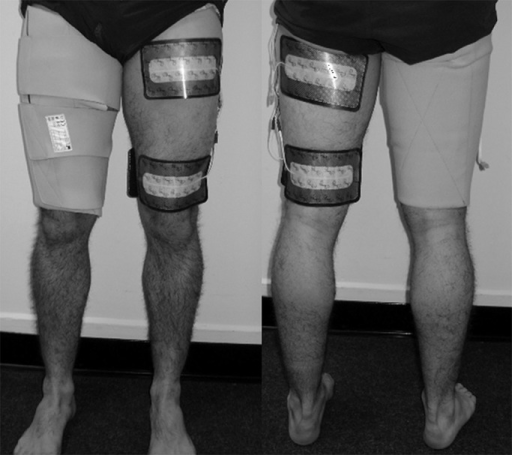 Four large hydrogel electrodes are applied to the skin of each thigh using a neoprene wrap. The electrodes were pre-wired and mounted inside the wrap. The model's left leg is without the garment to illustrated electrode positioning.