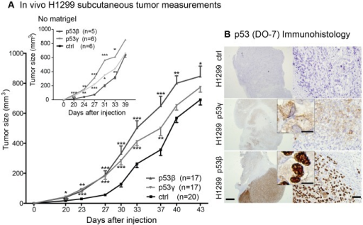Tumor growth of H1299 p53β and H1299 p53γ cells.(A) H1299 in vivo s.c. tumors were measured in 3 independent experiments. In total: p53β+ tumors n = 17; p53γ+ tumors n = 17; Control vector (Ctrl; tdTomato+) n = 20. The tumor sizes of p53β+ and p53γ+ tumors were compared to ctrl tumors using Students t-test. * P-value<0.05, ** P-value<0.001, *** P-value<0.0001. Insert (top left corner) shows tumor measurements of tumors that were injected without matrigel. Error bars: standard error of mean. (B) Immunohistochemistry of p53 (DO-7) of s.c. tumors. Top: p53-negative vector control tumor (Ctrl). Middle: p53γ+ tumor. Bottom: p53β+ tumor. Scale bar left images 1 mm, right images 50 µm, middle insert 10 µm.