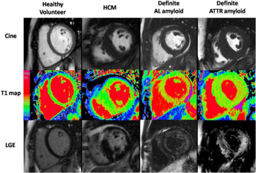 Characteristic examples from CMR scans - CMR end-diastolic cine still (upper panel); ShMOLLI native T1 map (middle) and late gadolinium enhancement (LGE) images (lower) in (left to right) healthy volunteer, HCM, definite AL and definite ATTR patients. Note the markedly elevated myocardial T1 time in the AL cardiac amyloid patient and ATTR patient into the red range of the colour scale (the elevation is higher in AL, i.e. more red) compared to the normal control (green) and the patient with hypertrophic cardiomyopathy.