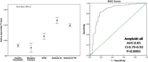 ROC curve for native T1 - Left pane: Native T1 in healthy volunteers, mutation carriers, HCM, definite AL and definite ATTR. Right panel: Receiver-operating characteristic (ROC) curve for the discrimination of possible or definite cardiac amyloid by native myocardial T1 from HCM.